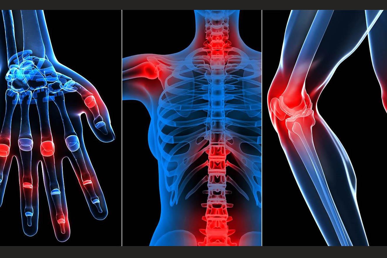 علاج مرض التهاب المفاصل أو الروماتيزم: تعريفه وأنواعه